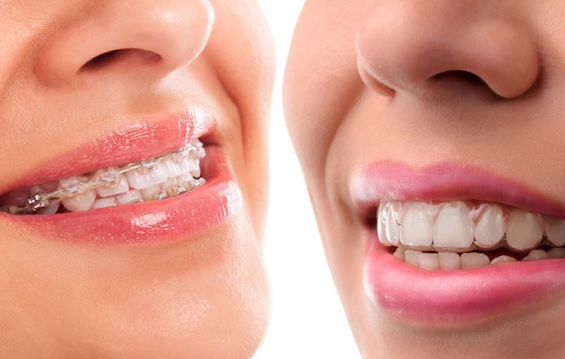 Invisalign vs braces cost in North Sydney