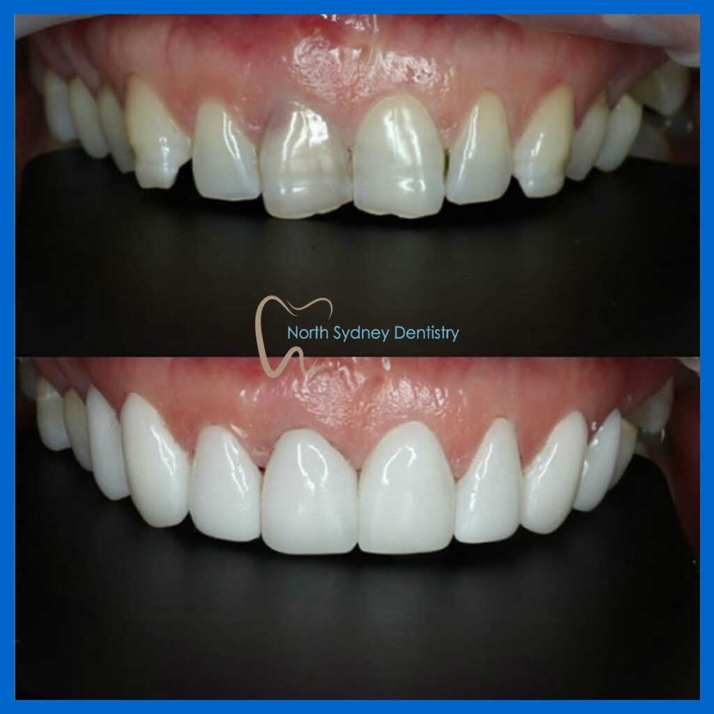 Best dental veneers in North Sydney