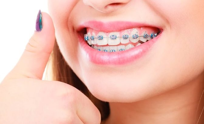braces cost in north sydney