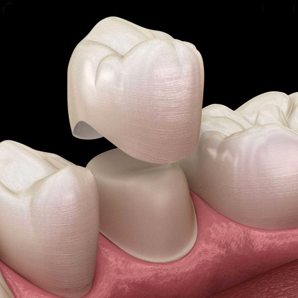 tooth crown cost