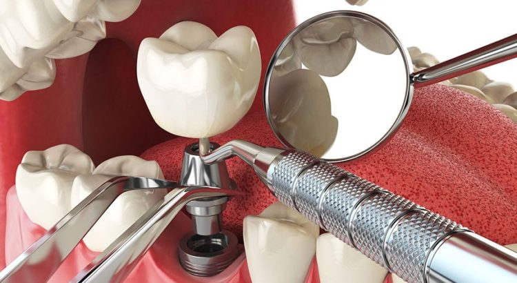 durability of dental implants in North Sydney