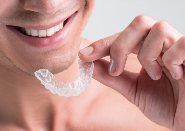 invisalign cost in north sydney