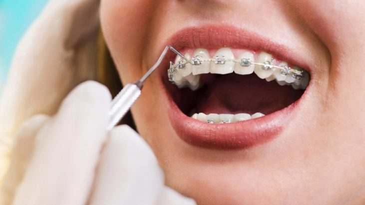 orthodontics north sydney