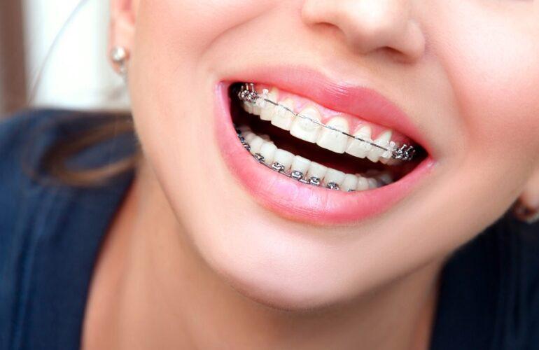 teeth braces Sydney